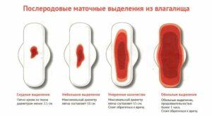 Послеродовые маточные выделения
