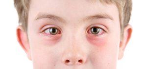 Аллергический конъюнктивит - фото симптомов аллергии