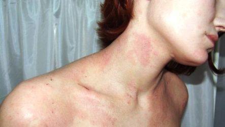 Пищевая аллергия у взрослых: симптомы и методы лечения в 2019 году