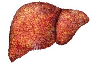 Цирроз печени может вызвать боль под ребрами