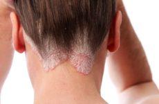 Сущность и особенности лечения псориаза