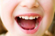 Стоматит: лечение у детей в домашних условиях
