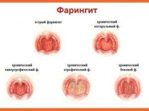 Острый и хронический фарингит