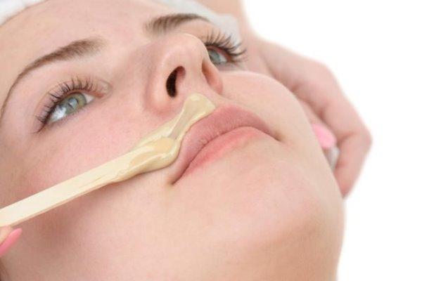 Удаление волос над верхней губой